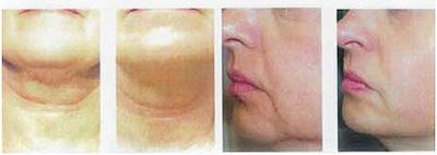 skin-tightening-img01